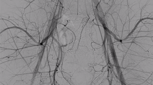Traumatic Priapism Embolization<br> – Javier Armijo, MD