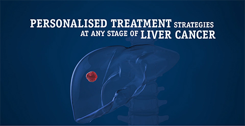 Personalised Treatment Strategies - Liver Cancer