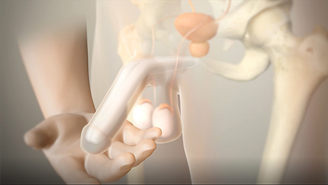 Tactra Malleable Penile Prosthesis Animation