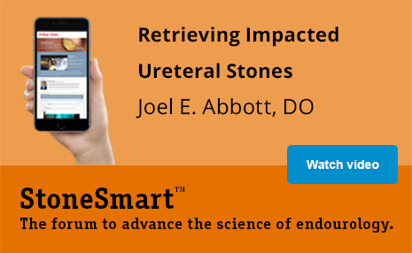 Retrieving Impacted Ureteral Stones with Joel E. Abbott, DO | StoneSmart(TM) The forum to advance the science of endourology.