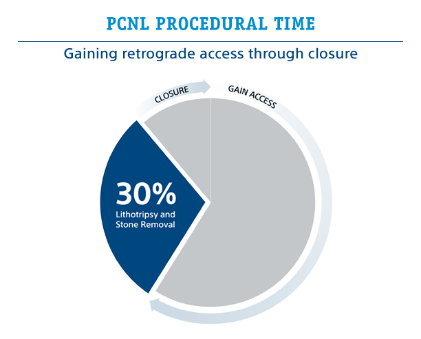 PCNL Procedural Time: Gaining retrograde access through closure - 30% Lithotripsy and Stone Removal