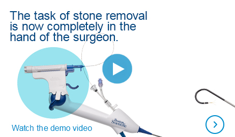 The task of stone removal is now completely in the hand of the surgeon. Watch the demo video.