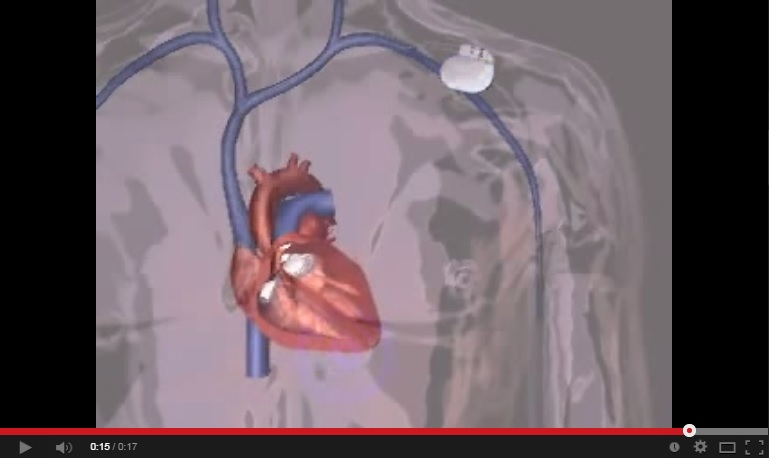 Video that shows Animation of Implanting a Pacemaker