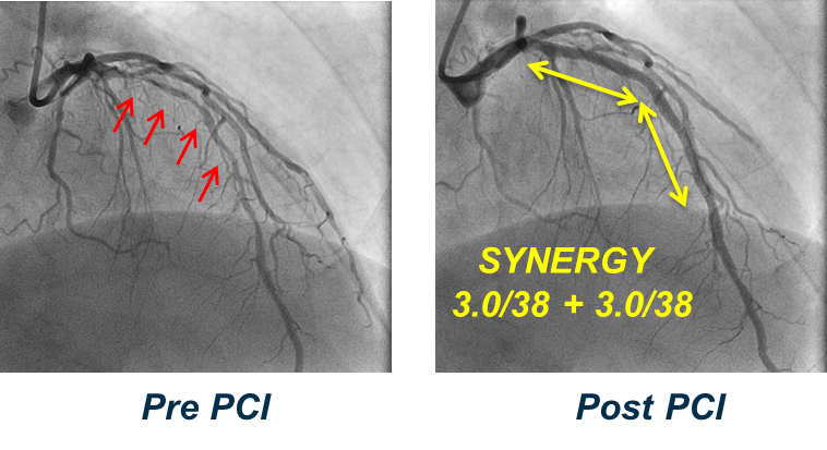 Pre- and Post-PCI images