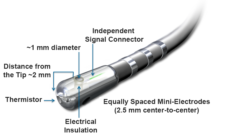 IntellaTip MiFi's Unique Catheter Design