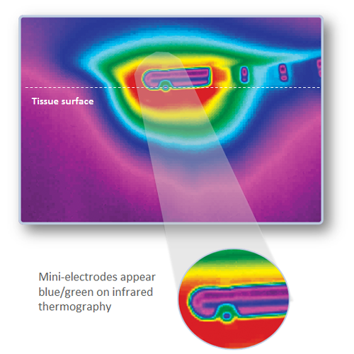 Mini-electrodes appear blue/green on infrared thermography