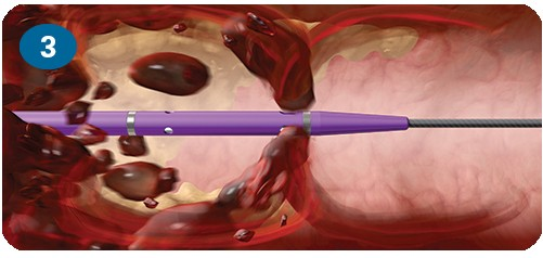 Angiojet Mechanical Peripheral Thrombectomy System