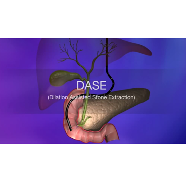 Dilation Assisted Stone Extraction (DASE)