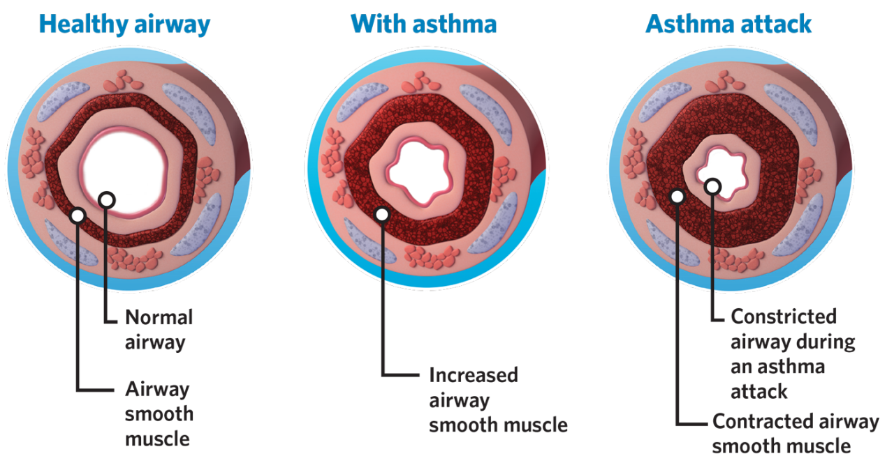 Asthma and Airways