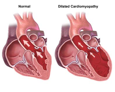 Image of hearts showing a normal and a dilated cardiomyopathy heart