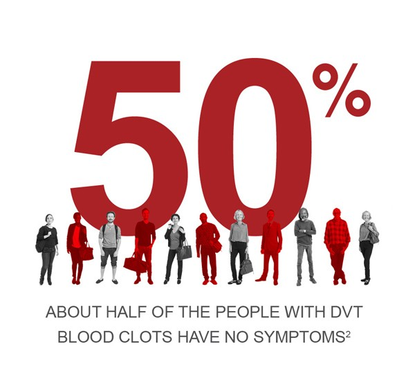 DVT Symptoms are not present in approximately 50% of people with deep vein thrombosis.