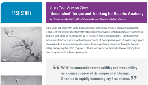 Direxion Torqueable Microcatheter case study
