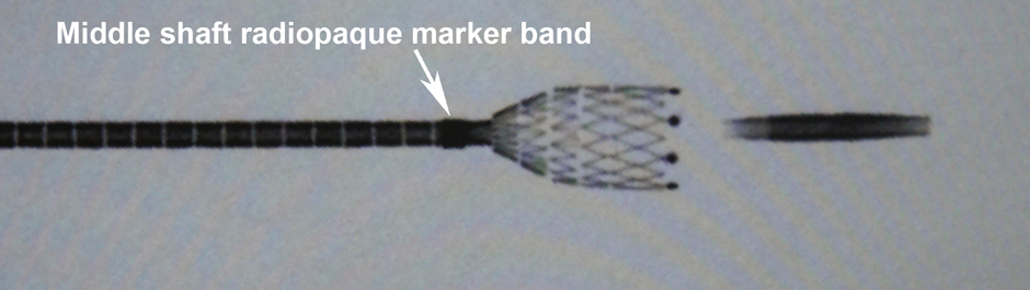 Middle shaft radiopaque marker band - deployment technique of Innova Stent