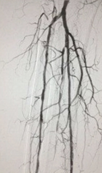 Case CLI with Right Foot Ulcer Thrombectomy post-procedure arteriogram