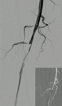 Thrombectomy of Occluded SFA - catheter positioning