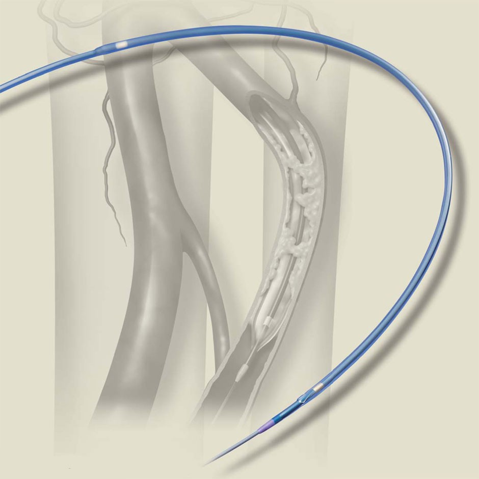 Sterling SL Balloon Dilatation Catheter