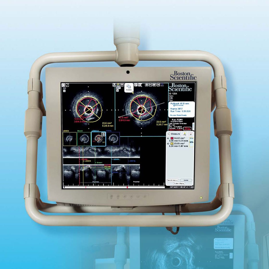iLab™ Ultrasound Imaging System