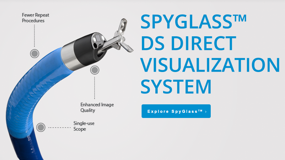 SpyGlass™ DS Direct Visualization System