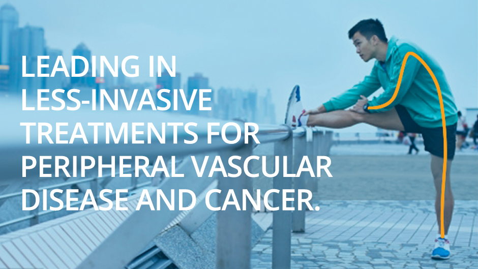 Leading in less-invasive treatments for peripheral vascular disease and cancer.