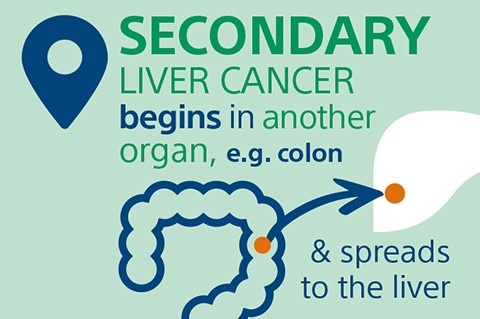 Secondary liver cancer