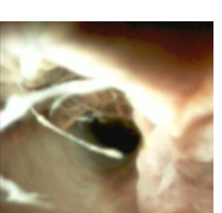 Pre-surgical mapping and cholangioscopy for cholangiocarcinoma