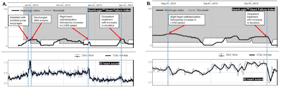 HeartLogic and S3 heart sound trends of five HeartLogic alerts occurred in two LVAD patients