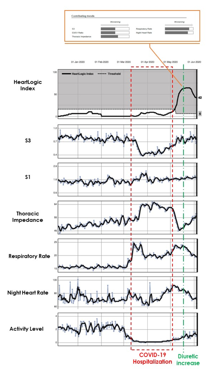 Figure 1 - HeartLogic Report
