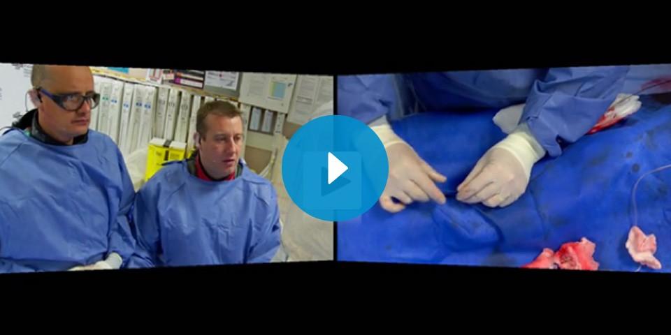 InCathlab Live Case: Right Coronary Artery CTO