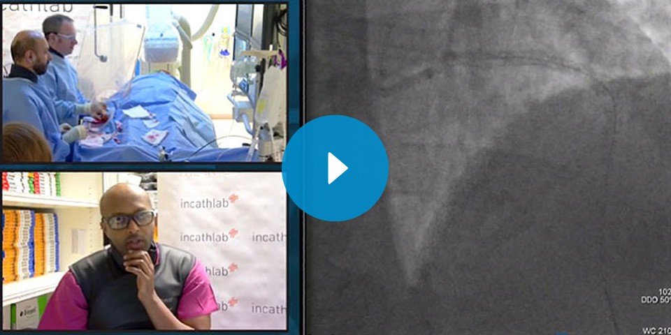 InCathlab Live Case from Bournemouth Hospital
