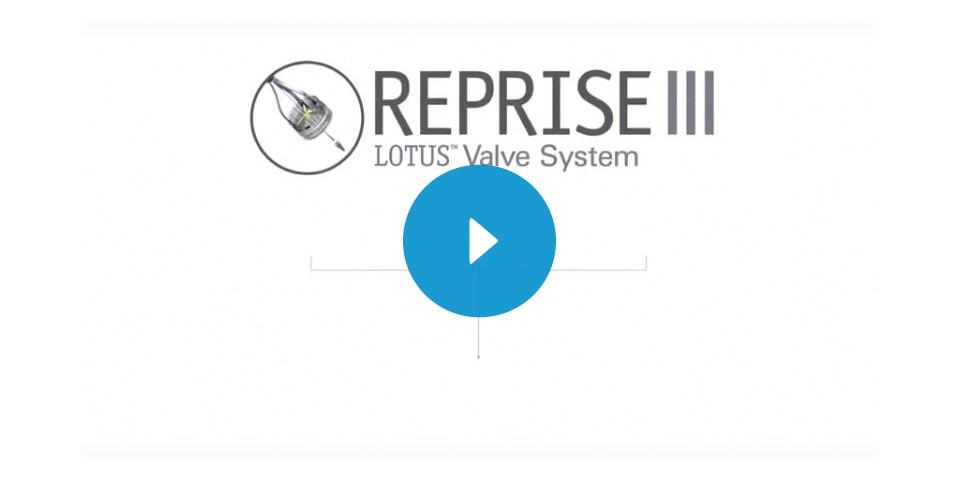 REPRISE III Data Highlights Animation