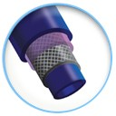 Advance Braided Shaft Technology