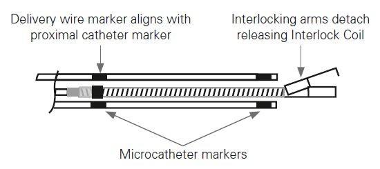 Microcatheter double maker