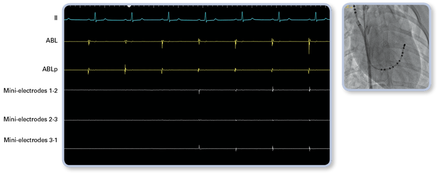 EKG showing InteallaTip MiFi tip entry into right atrium