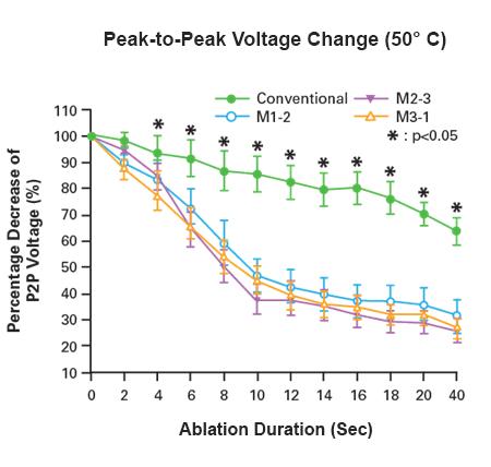 IntellaTip MiFi Lesion Maturation Feedback Recording