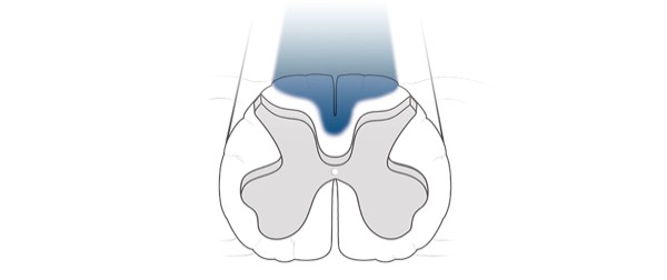 Dorsal column stimulation