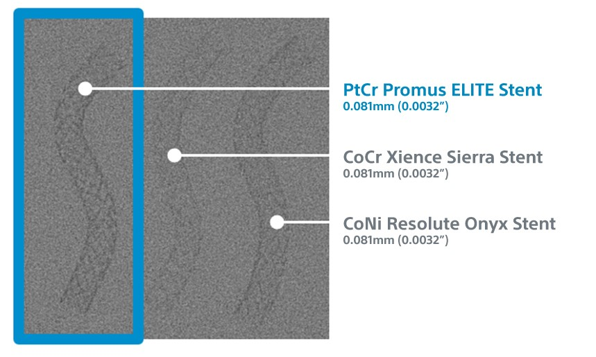 Flouro image comparing the visibility of the Promus ELITE Stent System with competitive drug-eluting stents