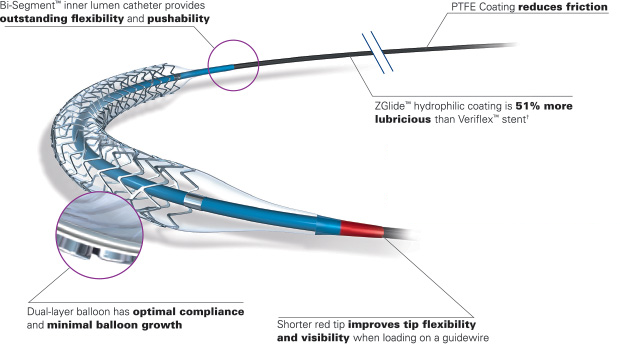 Stent Delivery System
