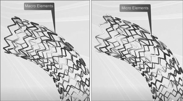Express LD Iliac and Biliary Stent's Macro and Micro Elements