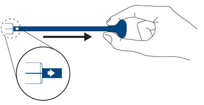 self expanding stent Innova pullgrip