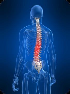 Chronic-pain-backache