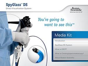 SpyGlass DS Direct Visualization System