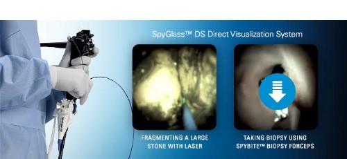 SpyGlass DS System Web Banner