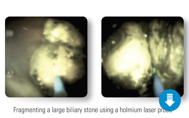 Fragmenting stone with a holmium laser probe