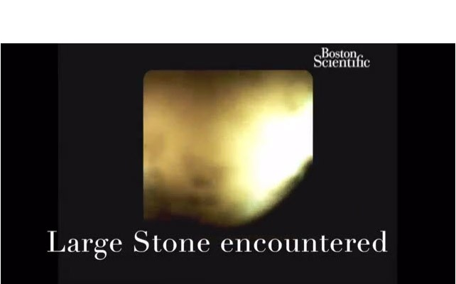 Single Session EHL for Multiple Large Bile Duct Stones by Neil Sharma, M.D. and Colin Linke, MS4, Indianapolis, IN