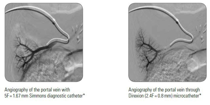 Angiography of the portal vein through Direxion