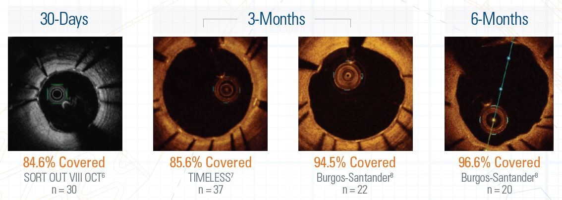 Optimal Healing Shown Through Strut Coverage and Angioscopy
