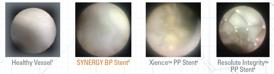 Angioscopy demonstrates differentiated and improved healing with SYNERGY BP Stent.