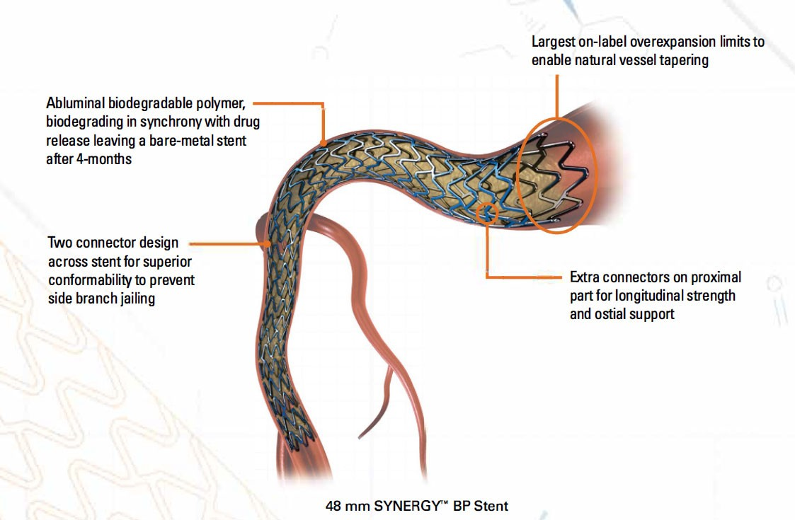 """48 mm SYNERGY'"""" BP Stent"""