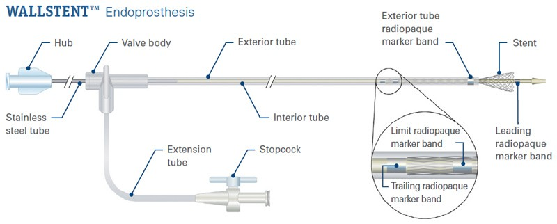 WALLSTENT™ Endoprosthesis detailed schematic