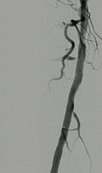 Thrombectomy of Occluded SFA - post-adjunctive treatment